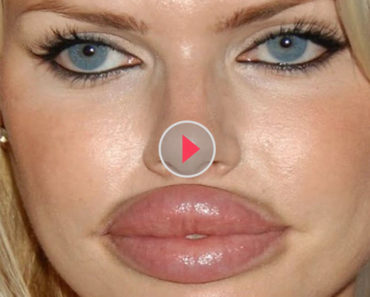 Worst Plastic Surgeries